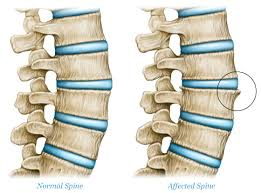 spinal